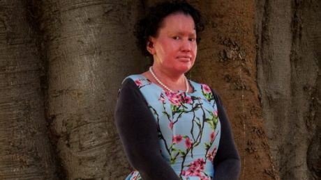 Carly Findlay, a Melbourne author and disability activist, says she's received two anonymous death threats online in the ...