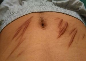 Scars on the torso of Mohammad Albederee, who has been cutting himself with a razor.