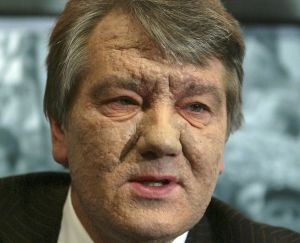 The face of Ukrainian leader Viktor Yushchenko, shows the scars of an alleged poisoning.