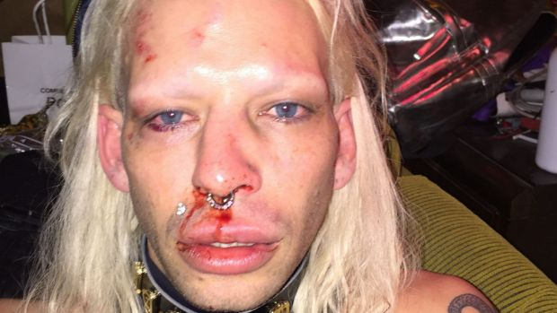 Danny Levi Bryce-Maurice says he was attacked by four men in St Kilda and savagely beaten.