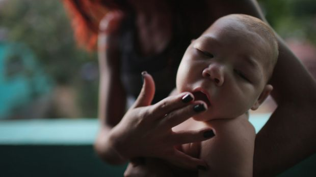 Estafany Perreira holds her five-month-old nephew David, who has microcephaly, in Recife, Brazil.