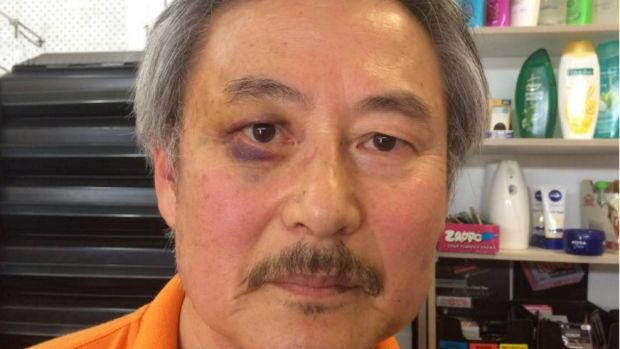 Former Korean Army lieutenant, high school teacher and counsellor Paul Shin shows off a black eye after a vicious attack ...