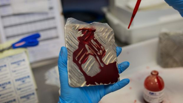 A biologist works on putting blood on iron plates to feed the females of the nursery that produces genetically modified ...