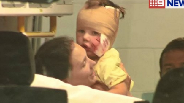 A dog has mauled a young child on the face in Melbourne's outer east.