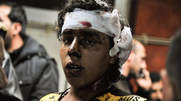 An injured victim of the triple blast in Sayyida Zeinab, a predominantly Shiite Muslim suburb of the Syrian capital ...