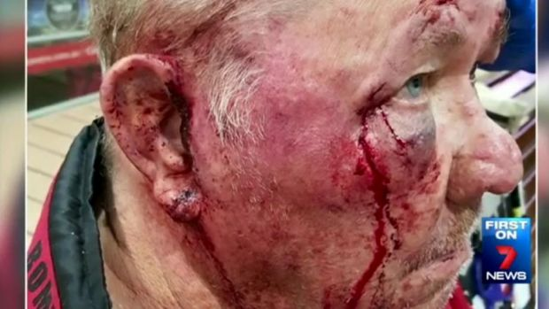 A 22-year-old man has been charged over the attack on Mr Haynes at Bass Hill.