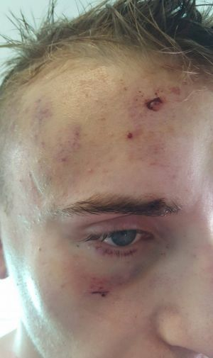 Dylan Souster woke up in Waterloo Oval after being knocked unconscious.