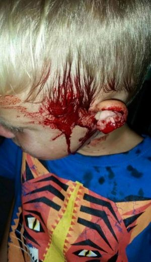 Tyler's face was covered in blood. A family friend said he was bitten by a snake as he slept.