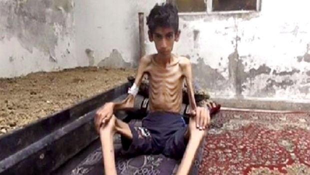This undated photo was one of the images that brought attention to the plight of Madaya's citizens.