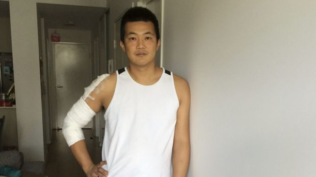 Ray Kan says he was lucky he didn't break any bones in the alleged hit and run.