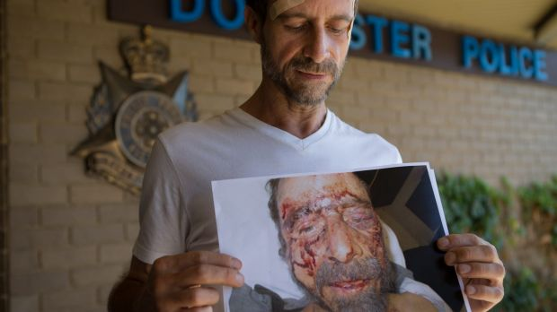 Paul Cenci shows a photo of himself in hospital with the horrific injuries he suffered in a savage attack last month.