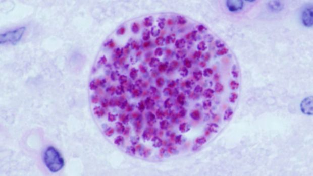 A toxoplasma gondii cyst, shown here in a mouse brain.