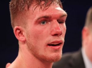 Nick Blackwell after being defeated by Chris Eubank Jnr.  .