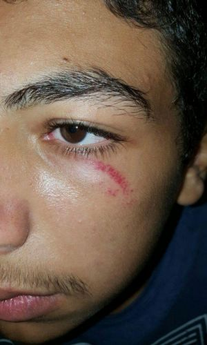 An image purportedly depicting a facial abraision suffered by a child at Nauru during a disturbance overnight.