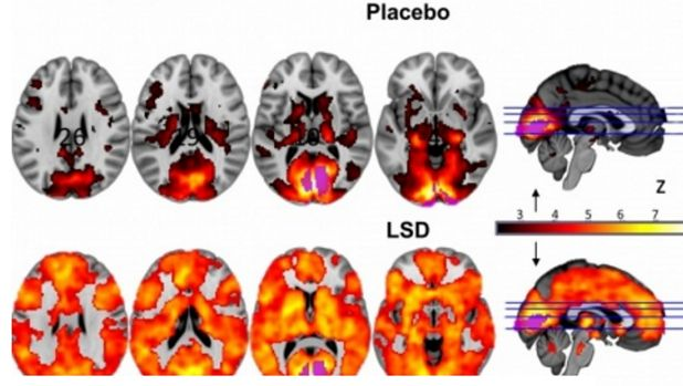 This image shows how, with eyes-closed, much more of the brain contributes to the visual experience under LSD than under ...