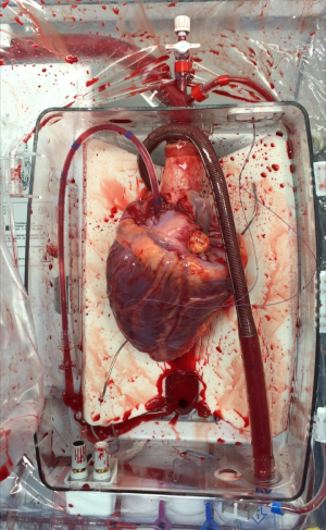 The donor heart reanimated and beating after circulatory death the ex vivo perfusion rig.