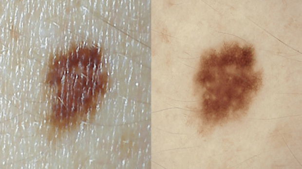Clinical trial research shows therapies can help prevent melanoma spread
