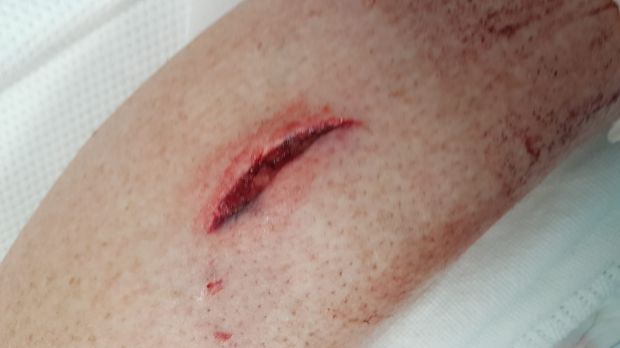 One of the bites Banks woman Kerry Evans sustained when she was attacked by a wombat.
