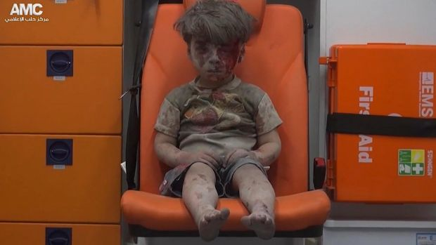 Omran Daqneesh, the child whose image has defined the misery of Aleppo for many. His 10-year-old brother died from ...