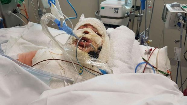 The 28-year-old victim in hospital after her ethanol burner exploded.