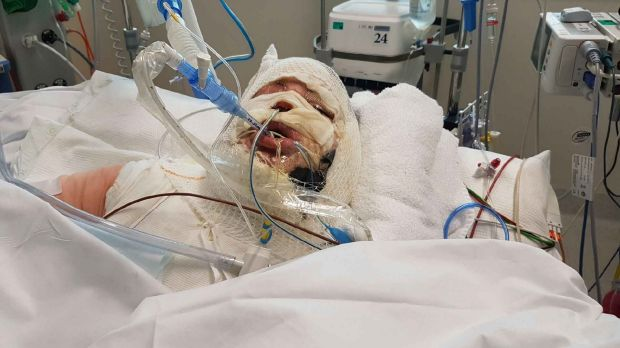 A 28-year-old woman who suffered severe burns to her face and body when a burner exploded in her backyard in Western ...
