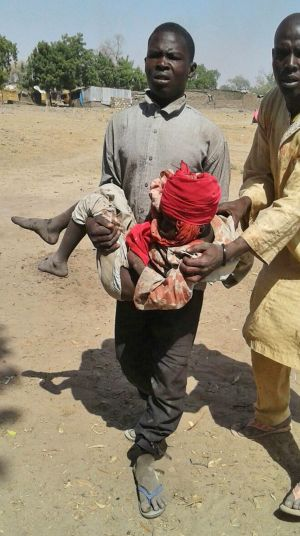 A man carries an injured child following the air strike on a camp for displaced people in Rann, Nigeria on Tuesday, ...