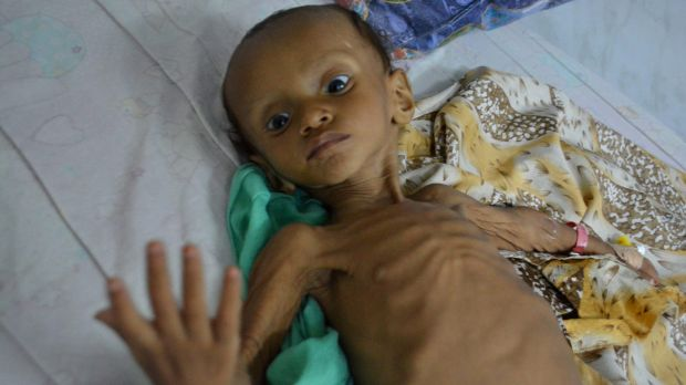 A boy who suffers from malnutrition lies on a bed at a hospital in Hodeidah, Yemen. Even before the war, Hodeidah was ...