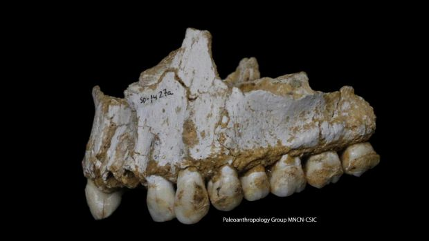 A dental calculus deposit is visible on the rear molar of this Neanderthal upper jaw bone.This individual was eating ...
