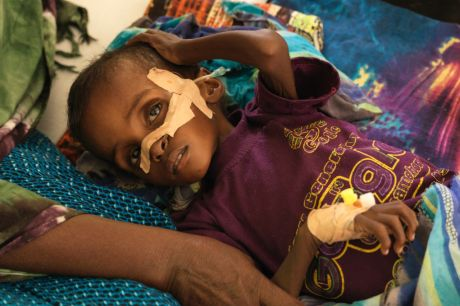 Niman Adan Gabush, 2, is a severe malnutrition case at Hargeisa Group Hospital in Somaliland.