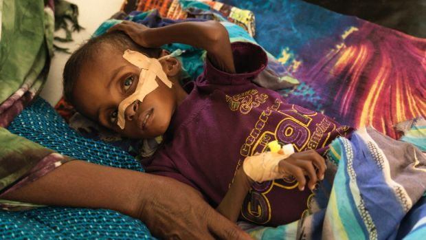 Niman Adan Gabush, 2, is a severe malnutrition case at Hargeisa Group Hospital.