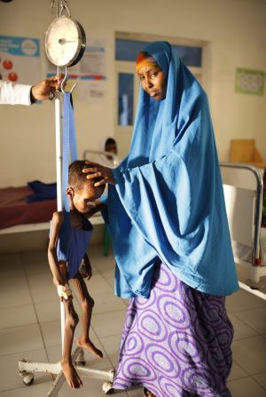 An emaciated Somali boy is weighed next to his distraught mother.