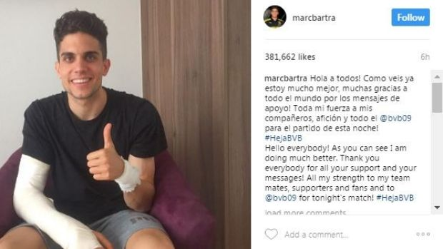 Encouraging signs: Injured Borussia Dortmund player Marc Bartra gives the thumbs up after surgery.