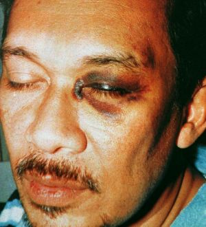 Anwar Ibrahim was beaten by a former police chief while he was in custody in 1998. His treatment led to a Royal Commission.