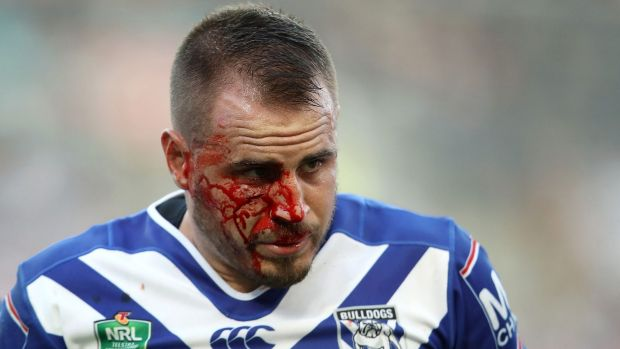 Bruised and beaten: Josh Reynolds sports a bloodied face after making a tackle on James Tedesco.