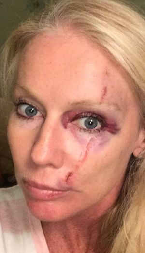 Shari Lea Hitchcock has spoken to police after claiming she was assaulted.