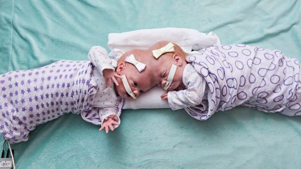 Philadelphia hospital separates conjoined 10-month-old twin girls