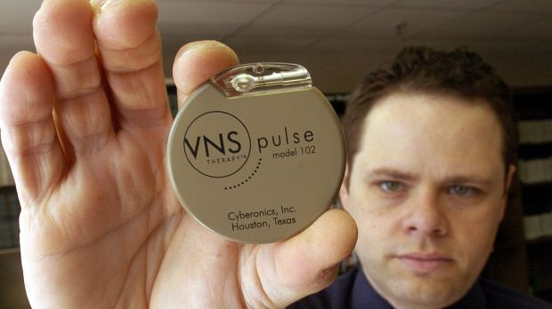 The Vagus Nerve Stimulation device is implanted in the chest like a pacemaker.