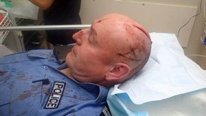 The officer was rushed to Royal Perth Hospital where he received a number of stitches to his wound.