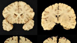 This combination of photos provided by Boston University shows sections from a normal brain, top, and from the brain of ...