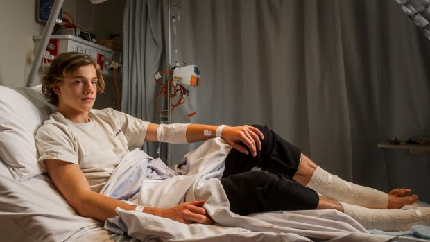 Sam Kanizay, 16, is believed to have been  bitten by a swarm of sea fleas at Dendy Street Beach in Brighton.