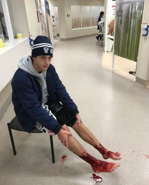 Bloody mess: Sam Kanizay in Emergency at Sandringham Hospital on Saturday night, his lower legs bloody after bathing in ...