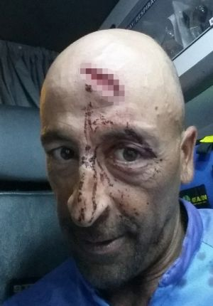 Skipper Oliver Galea received a deep gash on his forehead and others were knocked unconscious after the whale hit the ...