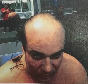 Jaron Chester is photographed by Michael Ibrahim with his head shaved as punishment for allegedly stealing laundered funds.