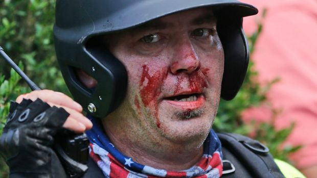 A white nationalist demonstrator left bloodied during the protest.