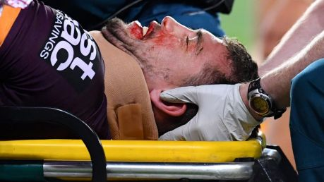Knock out: Corey Oates leaves the field on a stretcher on Friday night.