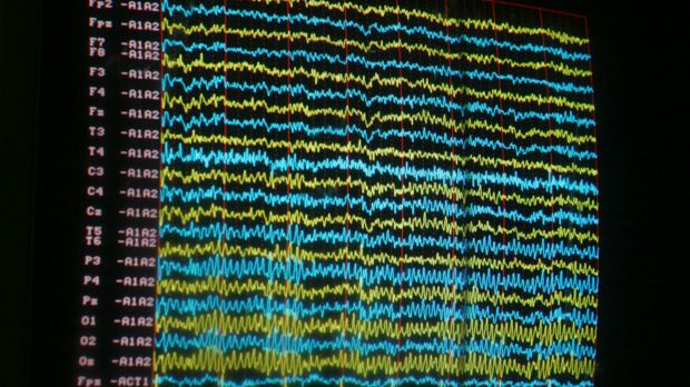 "An EEG measures electrical activity of the brain. ""Scalp electrodes translate neurological activity into waves, cerebral ..."