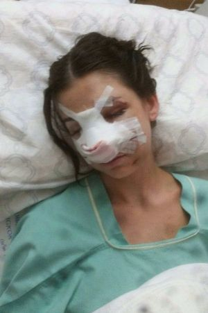Shani suffered severe injuries to her face during the crash.