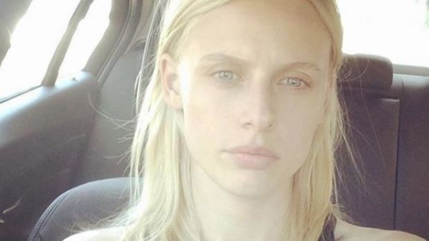 Model Lauren Wasser wants women to take toxic shock risk of tampon use seriously