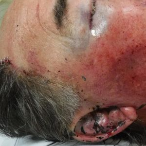 The 71-year-old required stitches to a head injury.