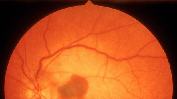 Macular dystrophy is a genetic disorder of the eye which people get young.
